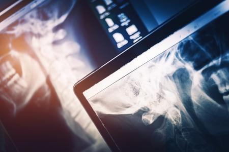 Röntgenscanausrüstung. X-Ray Scans auf Dual Display-Computer. Standard-Bild - 62415779