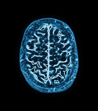 magnetic resonance image (MRI) of the brain scan