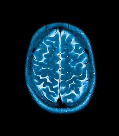 mri head magnetic resonance image of the head scan