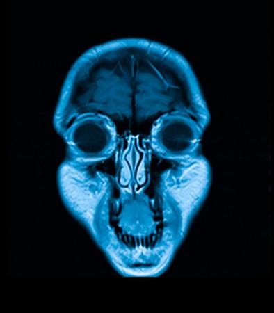 resonancia magnetica: IRM de la cabeza la imagen de resonancia magn�tica de la exploraci�n de la cabeza