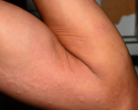 sarpullido: erupción alérgica enferma dermatitis textura de la piel eccema. Foto de archivo