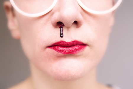 closeup of woman wearing glasses and having nosebleed Stock Photo