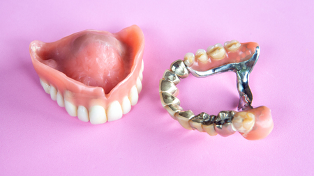 closeup of dental prosthesis on a pink background Banque d'images - 106139668