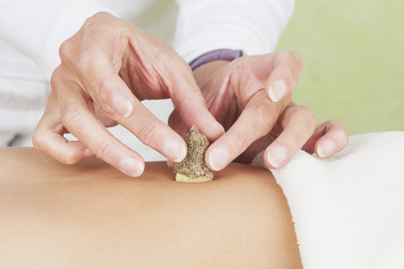 Germany,Frechen,Therapsit Placing Moxa And Ginger Root On Tummy Of Patient LANG_EVOIMAGES