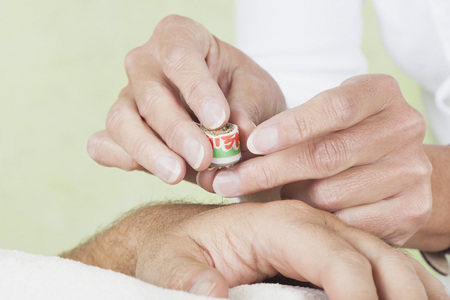 Female Therapist Preparing Acupuncture Moxa Therapy On Man Hand