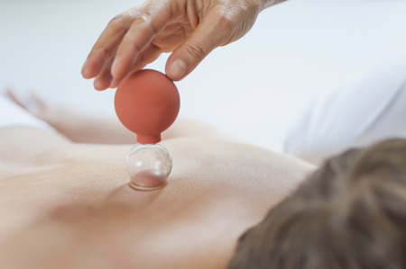 Traditional Chinese Medicine,TCM,female therapist with cupping glass during cupping therapy