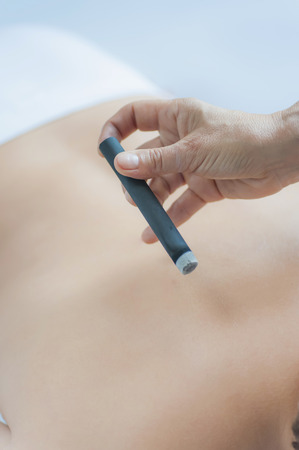 Traditional Chinese Medicine,TCM,female therapist with a moxa cigar during moxibustion