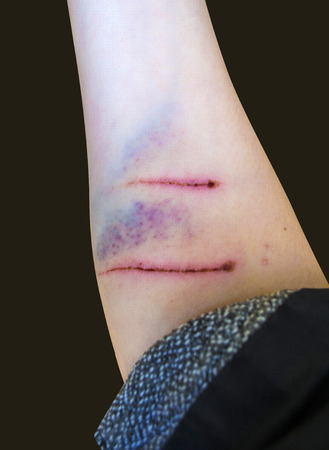 dog bite: dog bite is. from the dog bite is wound