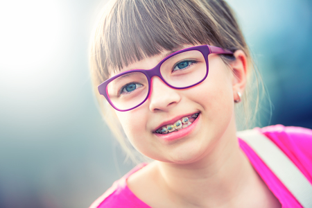 pre teen: Girl. Teen. Pre teen. Girl with glasses. Girl with teeth braces. Young cute caucasian blond girl wearing teeth braces and glasses.