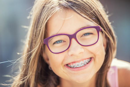 Happy smiling girl with dental braces and glasses. Young cute caucasian blond girl wearing teeth braces and glasses. Stock Photo - 82949567