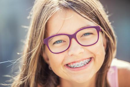 Muchacha sonriente feliz con los apoyos dentales y los vidrios. Joven rubia caucásica linda chica usando dientes llaves y gafas. Foto de archivo - 82949567