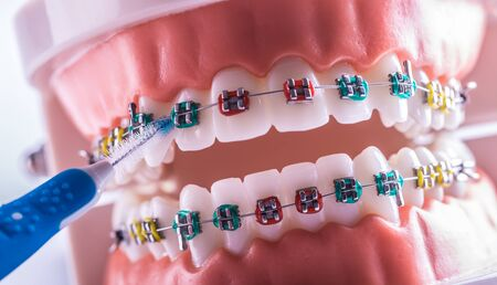 Tooth model from dental braces with inter dental teeth cleaning brush.