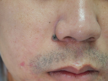 birthmark: Man with skin acne and birthmark near nose close up