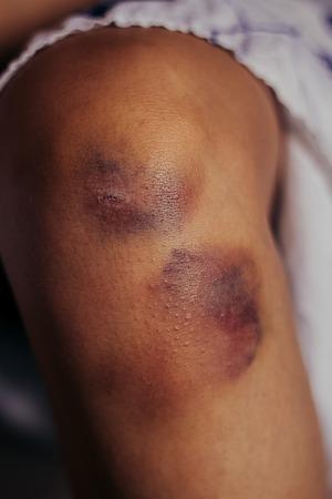 hemorragias: Mujer amamantando a un rodilla rozó magullado heridos con petequias superficie de la piel y el tejido decoloración en sus manos en un cuidado de la salud y el concepto médico, primer plano de la articulación y las manos Foto de archivo