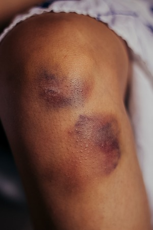 female hand: Woman nursing an injured bruised grazed knee with surface petechia on the skin and tissue discoloration in her hands in a healthcare and medical concept, close up of the joint and hands Stock Photo