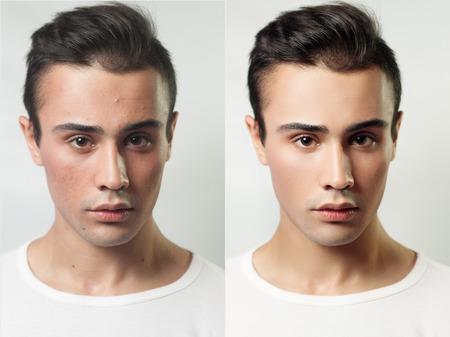 aging face: Before and after cosmetic operation. Young man portrait, isolated on a white background. Before and after cosmetic or plastic procedure, anti-age therapy, removal of acne, retouching. studio shot Stock Photo
