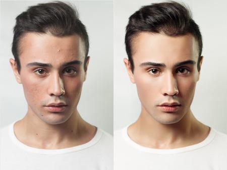 viso uomo: Prima e dopo l'operazione cosmetica. Ritratto di giovane uomo, isolato su uno sfondo bianco. Prima e dopo cosmetico o plastica procedura, terapia anti-age, rimozione dell'acne, ritocco. studio shot