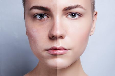 Voor en na cosmetische chirurgie. Jonge mooie vrouw portret, geïsoleerd op een witte achtergrond. Voor en na cosmetische of plastic procedure, anti-age therapie