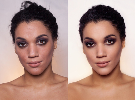 Before and after cosmetic operation. Young pretty woman mulatto, dark skinned portrait, studio picture, bright background. Before and after plastic procedure, anti-age therapy, looking into  lens