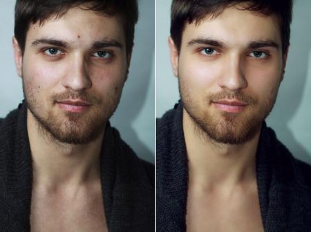 Vor und nach der kosmetischen Operation. Portrait des jungen Mannes, isoliert auf einem weißen Hintergrund. Vor und nach der kosmetischen oder plastischen Verfahren, Anti-Aging-Therapie, die Entfernung von Akne, Retusche. Studio-Aufnahme Standard-Bild - 54104536