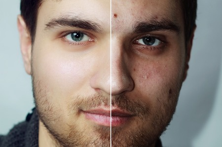Before and after cosmetic operation. Young man portrait, isolated on a white background. Before and after cosmetic or plastic procedure, anti-age therapy, removal of acne, retouching. studio shot Standard-Bild