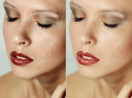 Prima e dopo l'operazione cosmetica. Ritratto di giovane donna bella, isolato su uno sfondo bianco. Prima e dopo cosmetico o plastica procedura, terapia anti-age