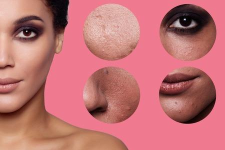 Konzept Hautpflege. Haut der Schönheit junge Frau vor und nach dem Eingriff auf Hintergrund, Mädchen, Mulattin. Studio-Aufnahme Standard-Bild - 55697611