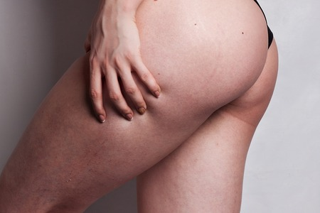 ordinary woman: Woman showing Cellulite - isolated on grey. female ass