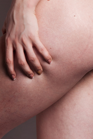 big ass: Woman showing Cellulite - isolated on grey. female ass