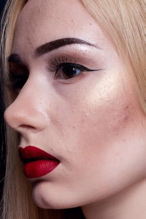 pubertad: Macro foto de la mejilla de la chica joven con un problema t�pico con acn� y las espinillas en la pubertad Foto de archivo