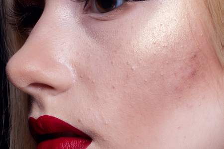 puberty: Macro shot of young girls cheek with typical problem with acne and pimples at puberty