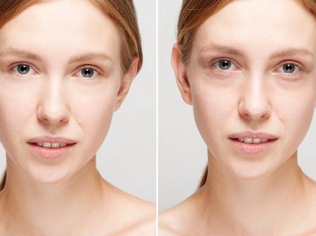 이전과 미용 수술 후. 흰색 배경에 고립 된 젊은 예쁜 여자의 초상화. 전 및 화장품 또는 플라스틱 절차, 안티 연령 치료 후