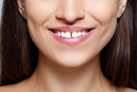 사람, 명품 및 패션, 감정 개념 - 행복 한 감정, 미소, 젊은 여자의 초상화 예쁜 눈과 이빨 사이의 간격 아름 다운 갈색 머리 여자의 근접 촬영 스톡 콘텐츠