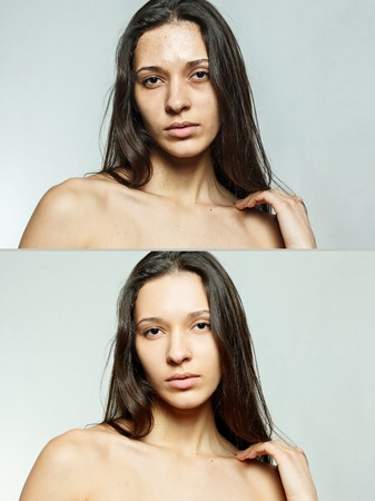 pimples: health, people, youth and beauty concept - Before and after cosmetic operation. Young pretty woman portrait. Before and after cosmetic or plastic procedure anti-age therapy, treatment