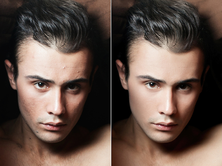 Young man portrait. Before and after cosmetic or plastic procedure, anti-age therapy, removal of acne, retouching. studio shot