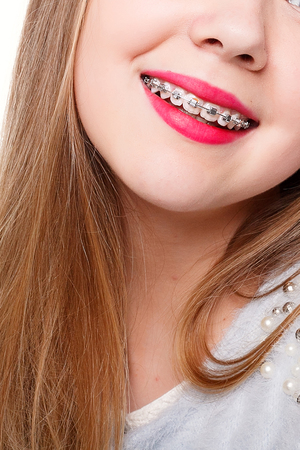Tanden, emoties, gezondheid, mensen, tandarts en lifestyle concept - Gezonde, mooie glimlach, het kind naar de tandarts. Portret van een klein meisje met orthodontische apparaat.
