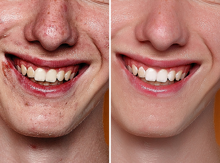 Before and after cosmetic operation. Young man portrait, studio background. Before and after cosmetic or plastic procedure, anti-age therapy, removal of acne, retouching. studio shot Zdjęcie Seryjne