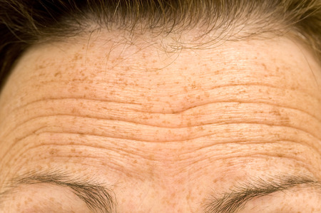 Wrinkled Forehead Or Furrowed Brow Banco de Imagens - 36524214