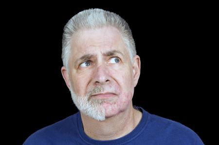 nicked: El hombre con la mitad de la barba Afeitado Off