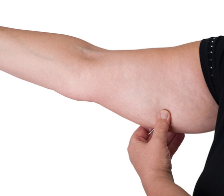 pinching: Woman checking her arm fat