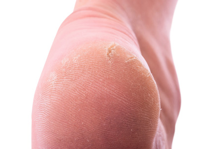 Closeup of a person with dry skin on heel. Isolated on white background Standard-Bild