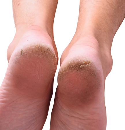 Closeup of a person with dry skin on heel . Isolated on white background.