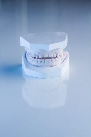 fake smile: False teeth prosthetic on  white background Stock Photo