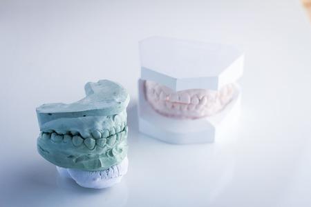 molares: modelo dental dental Coloron blanco y verde fondo blanco