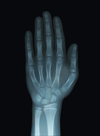 Child Hand X-Ray Unclosed Epiphysis