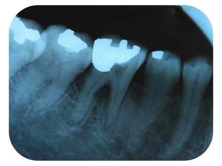 X-Ray Negative Tooth Filling Amalgam Stock Photo