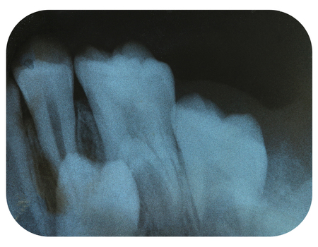 impacted: X-Ray Negative Tooth Impaction Stock Photo