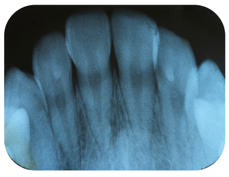 X-Ray Negative Tooth Incisors Stock Photo
