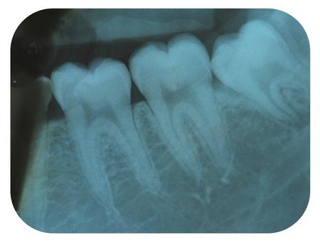 엑스레이 네거티브 이빨 몰라