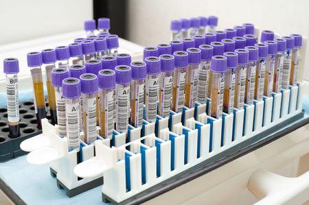 test probe: molti provette con il sangue sottoposto Archivio Fotografico